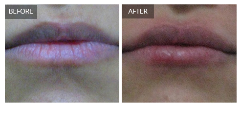 prp treatment for acne scars