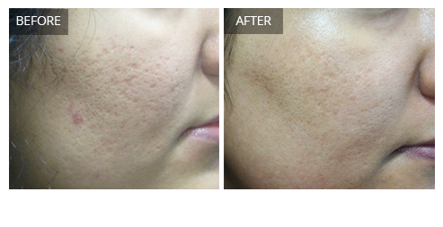 Pigmentation Treatment in Delhi