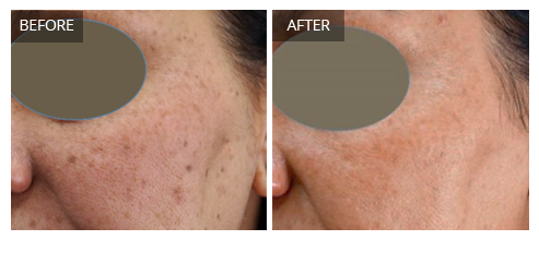 pigmentation on face