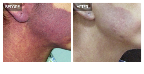 prp facelift before and after