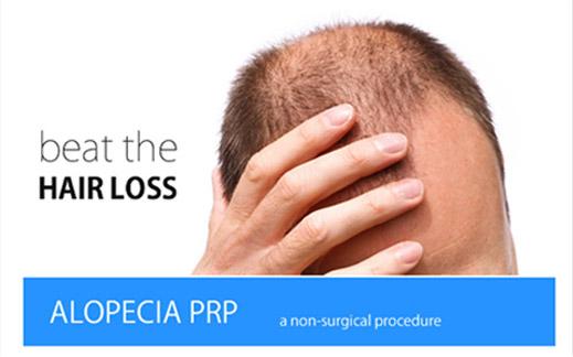 alopecia-prp