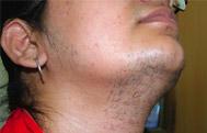 Hormonal Skin Disorders