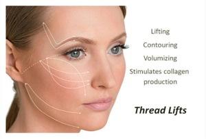 thread-lifts