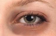 Under Eye Dark Circles